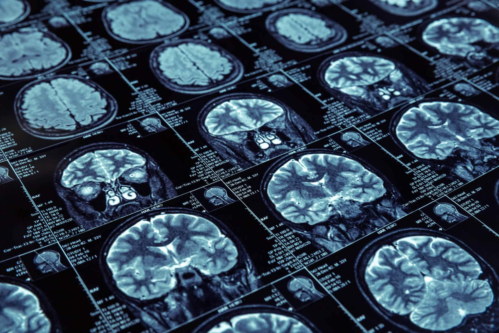 Alcohol-Related Brain Damage - Alcohol Rehab Guide